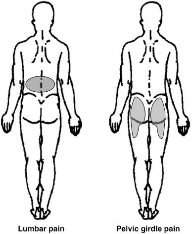 pelvic girdle pain victoria bc